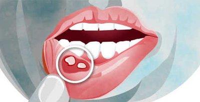 口腔溃疡是什么原因造成的