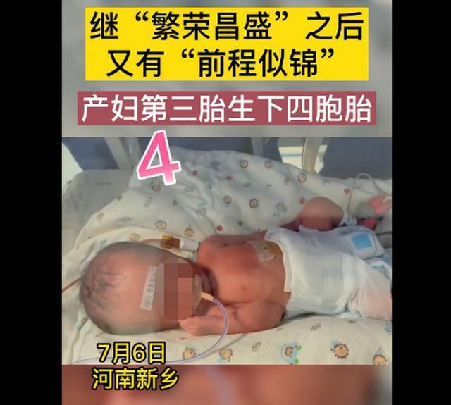 新乡一产妇第三胎生下龙凤四胞胎