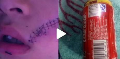 男孩开冰可乐被炸伤缝38针